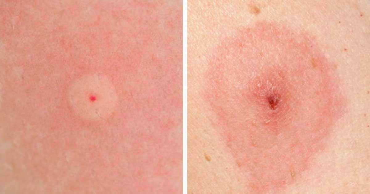 How To Identify 10 Of The Most Common Bug Bites - Homemaking.com